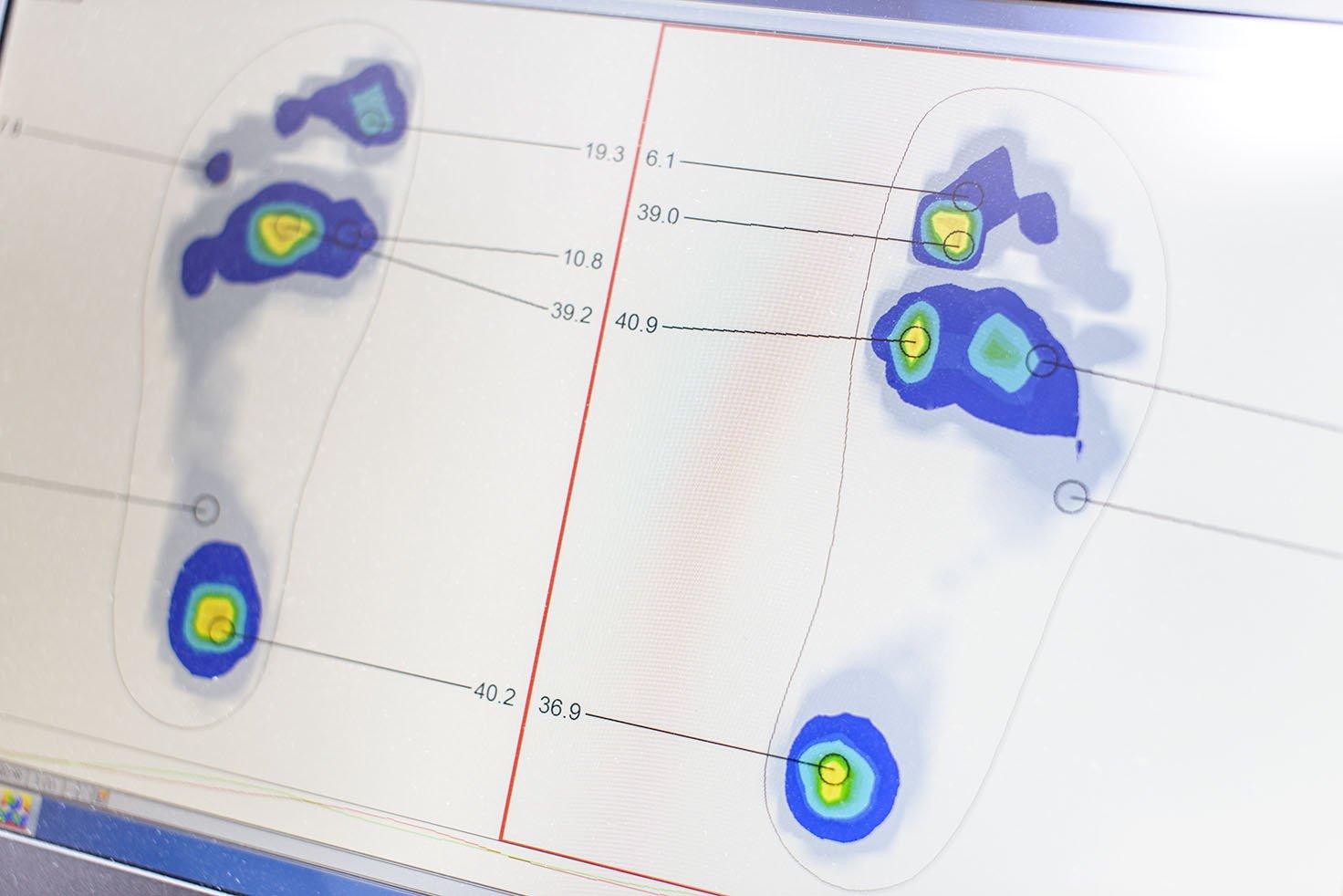 digitale Ganganalyse Orthopädie Köln