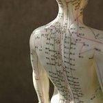 Akupunktur Orthopädie Köln