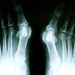Fußchirurgie Orthopädie Köln